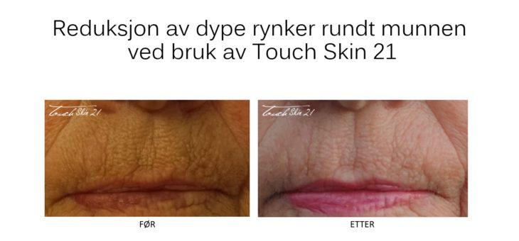 Touch Skin 21: Flott resultat etter 2 behandlinger av dype rynker rundt munnen.
